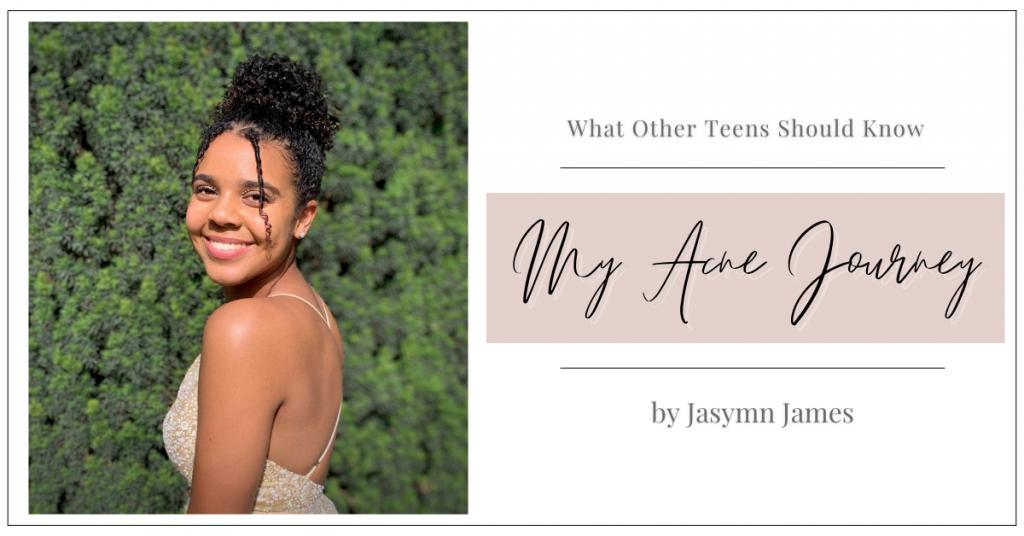 My Acne Journey by Jasmyn James